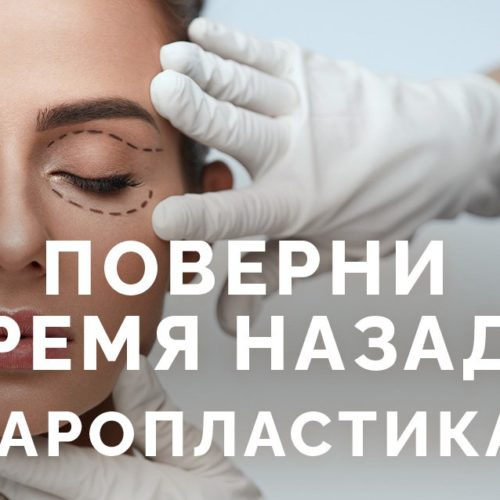 Блефаропластика в Киеве