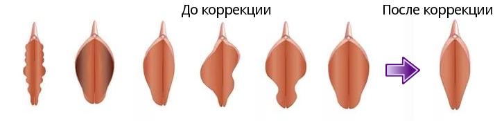 Пластика половых губ в Киеве — Клиника Perfecto-Room в Киеве  Форма Половых Губ