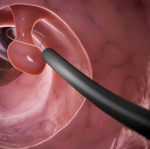 Иссечение лейоматозных узлов при гистероскопии в Киеве