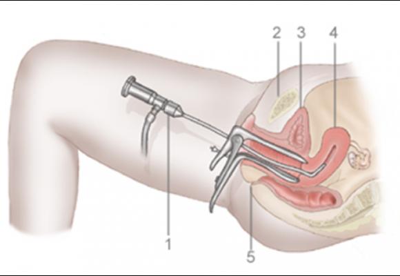 Полипэктомия с помощью гистероскопии в Киеве