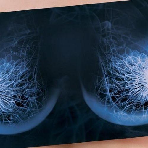 Удаление добавочной дольки молочной железы