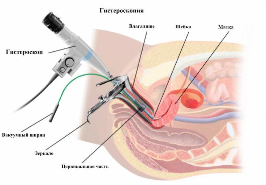 Диагностическая гистероскопии в Киеве