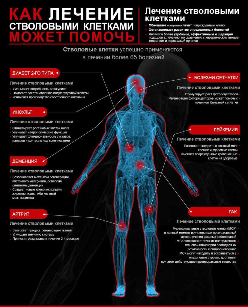 лечение стволовыми клетками Киев