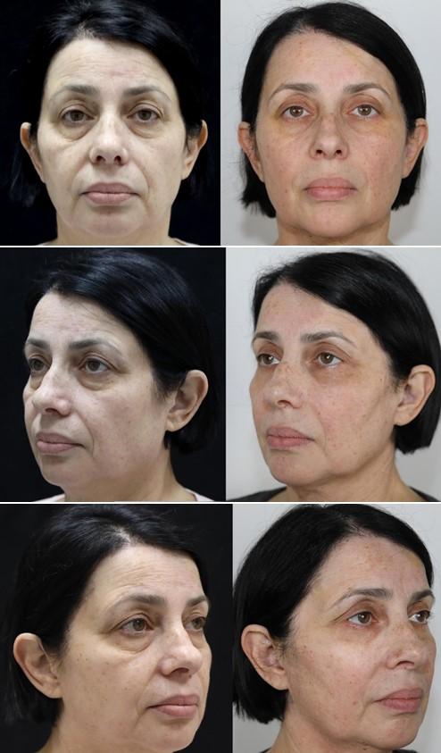 фото до и после безоперационной подтяжки лица