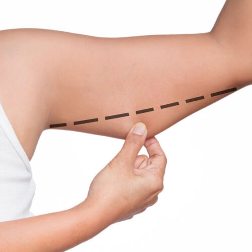 Аппаратная подтяжка кожи рук в г. Киев аппаратом Body Tite