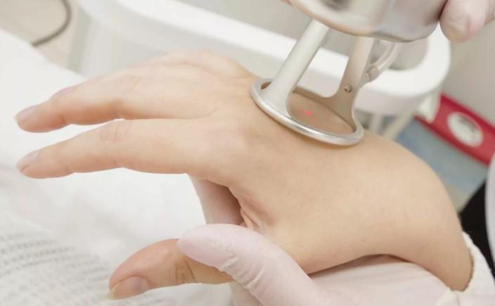 лазерная шлифовка кожи рук