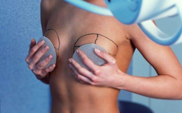 Подтяжка груди после родов цена в Киеве