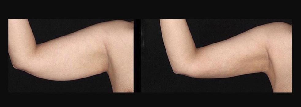 аппаратная подтяжка кожи рук