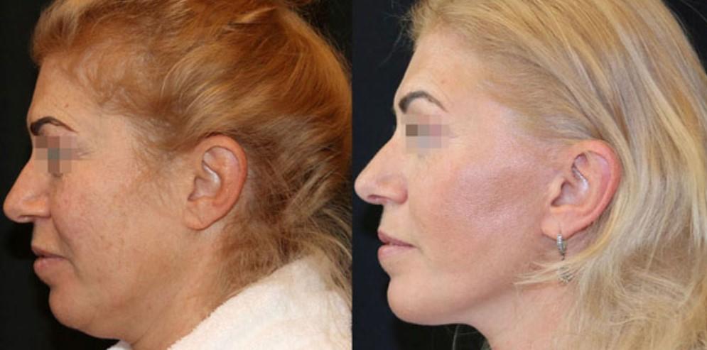 пластическая операция на лице