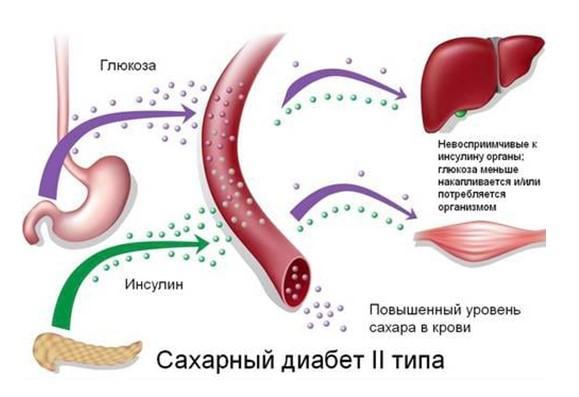 диабет симптомы