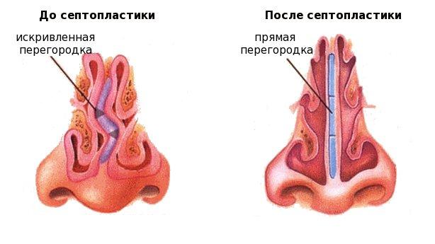 септопластика киев