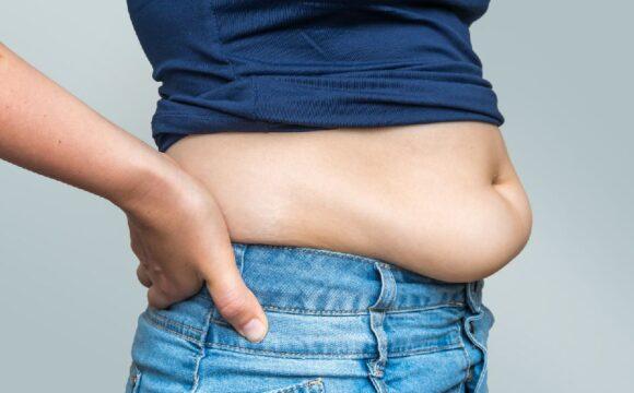 Как избавиться от жира после родов. Липосакция в г. Киев