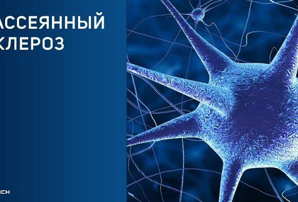 Лечение стволовыми клетками рассеянного склероза  новый прорыв в 2021 году